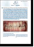 Dr. Flach, Zahnarzt Wuppertal - Zahnentfernung-Kieferorthopaedie-dgzmk