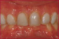 Dr. Flach, Zahnarzt Wuppertal - Zahnfleisch