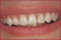 Dr. Flach, Zahnarzt Wuppertal - Zähne
