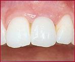 Dr. Flach, Zahnarzt Wuppertal - Zahn Implantat