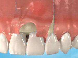 Dr. Flach, Zahnarzt Wuppertal - Wurzelspitzenentfernung